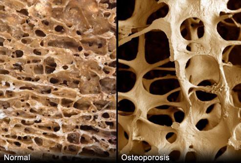 postnatal bone density information